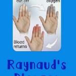 Raynaud's Disease www.thisautoimmunelife.com