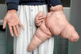 Strangest Human Body Parts and The Planet's Largest Hand