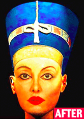 Nefertiti Plastic Surgery