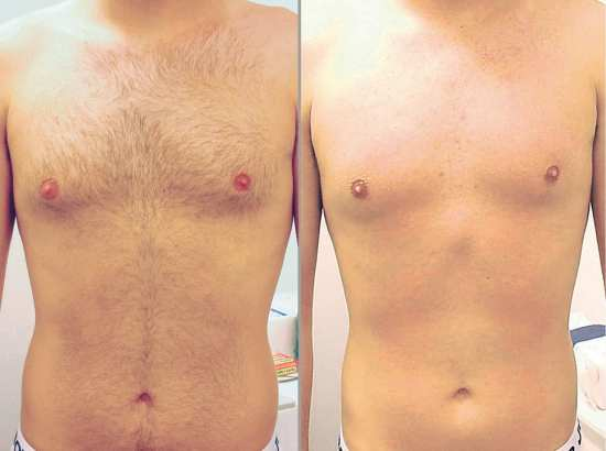 3 Theories in Favour of Body Hair