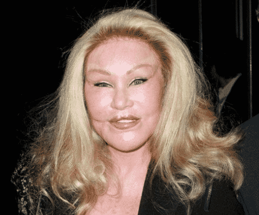 Bad Plastic Surgery Examples from Celebrities