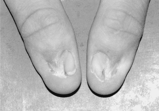 Strangest Medical Conditions and Nail Patella Syndrome