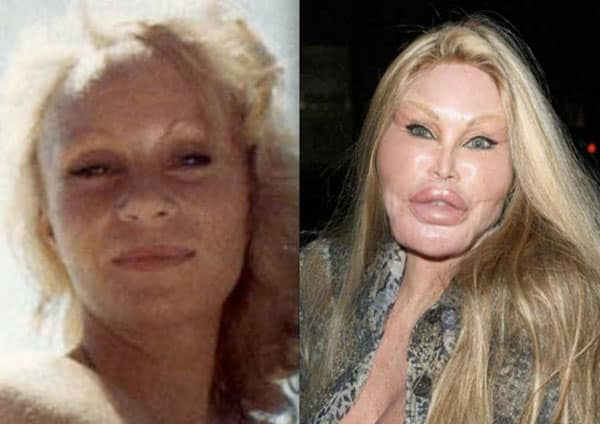 Bilderesultat for plastic surgery that went bad for regular people