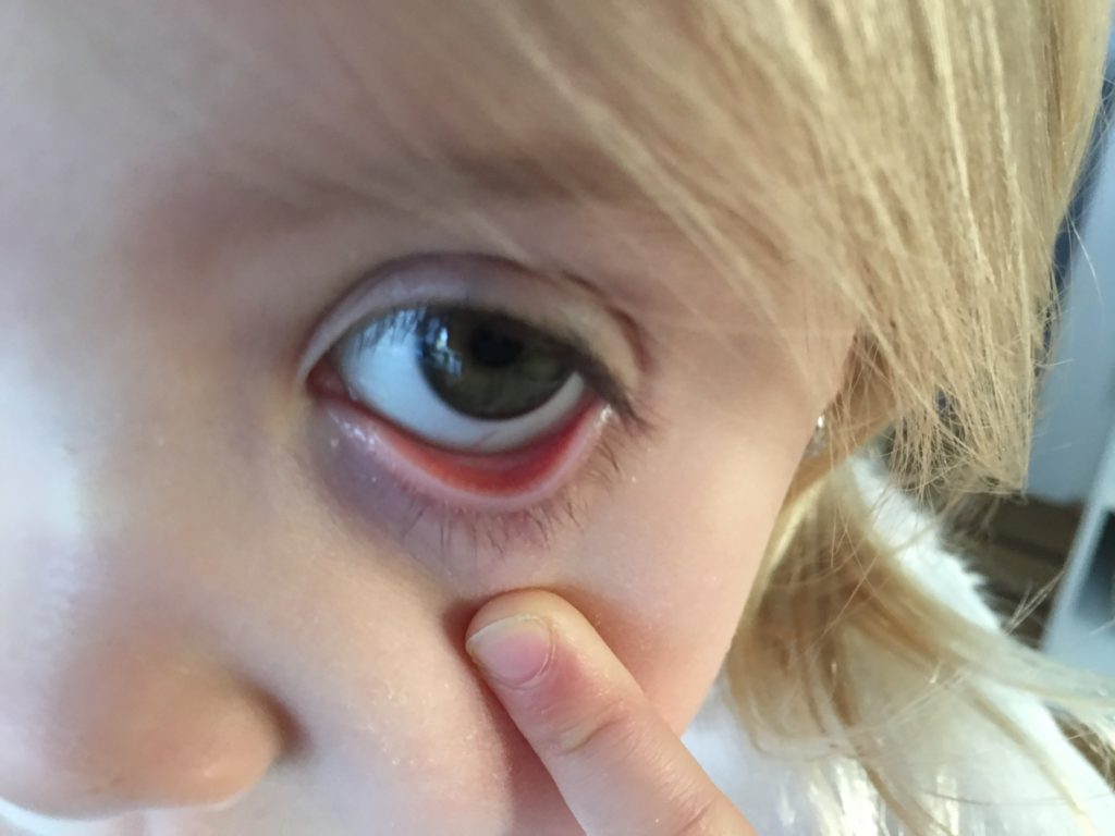 What Can Your Child S Lower Eyelids Tell You About Low