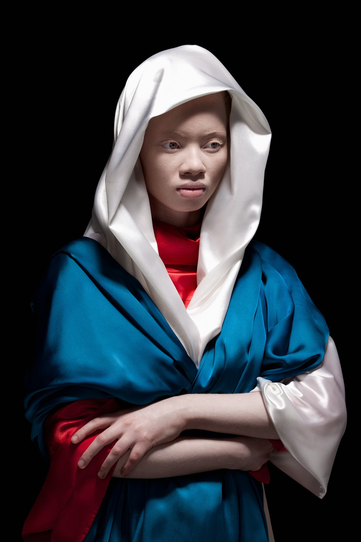 Models with Albinism