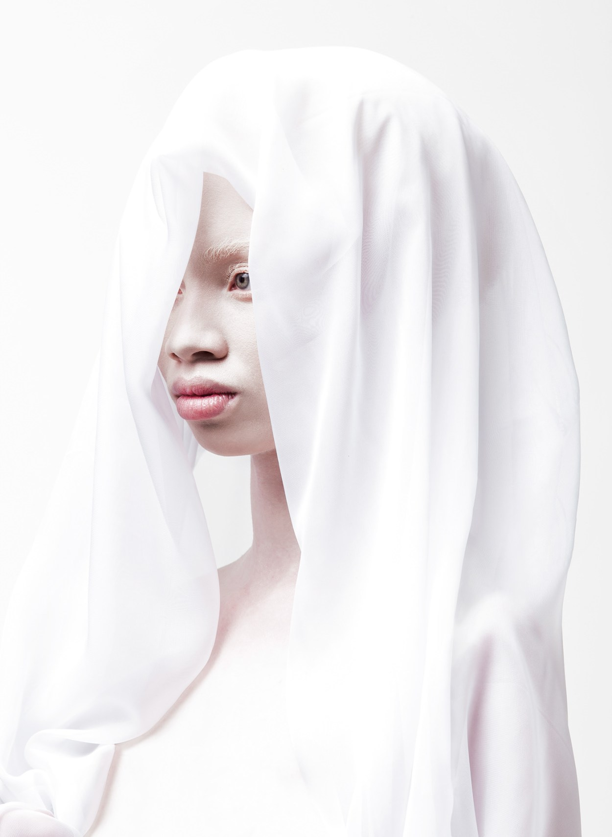 Models with Albinism Challenge Standards of Beauty 1