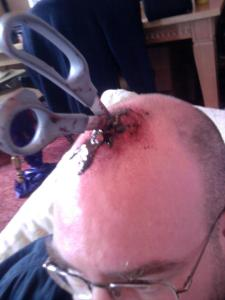 Scissors impaled in head make up effects