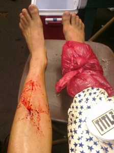 shin bleed