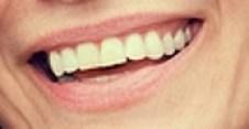 Woman Smiling Closeup