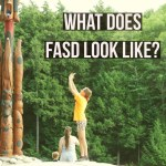 What Does FASD Look Like? #specialneeds