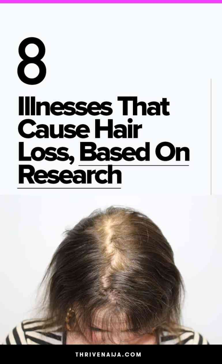 illnesses that cause hair loss
