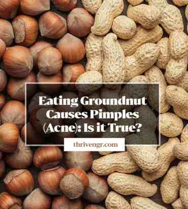Peanut, Groundnut Causes Pimples (Acne): Myth or Fact?