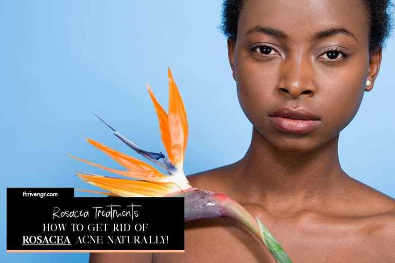 rosacea treatments