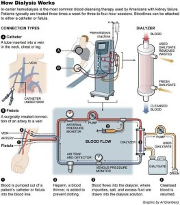 Diagram of how hemodialysis works.