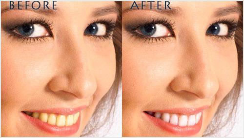 Mejorar una sonrisa en Photoshop