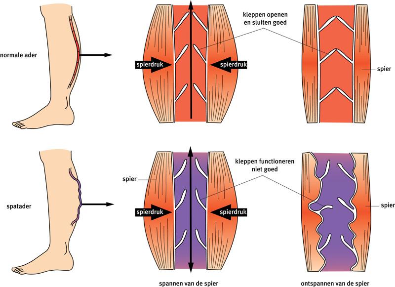 Afbeeldingsresultaat voor spataderen