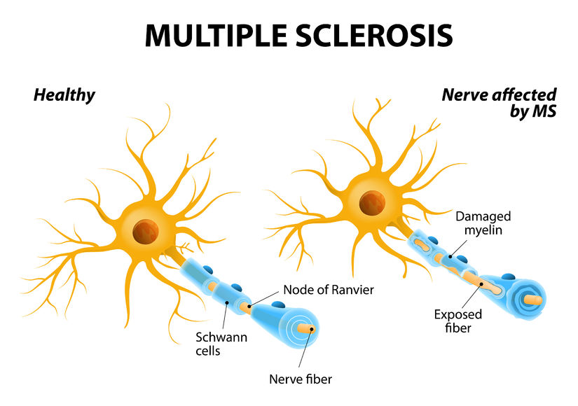 multiple sclerosis or ms. autoimmune disease. the nerves of the brain and spinal cord are damaged by one's own immune system. resulting in loss of muscle control, vision and balance.
