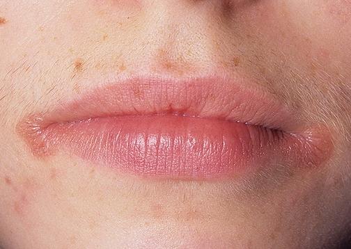 Заеды и трещины в уголках рта (ангулит, ангулярный хейлит ...