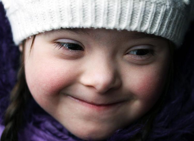 NUEVO: Científicos logran gran avance en la Investigación del Síndrome de Down