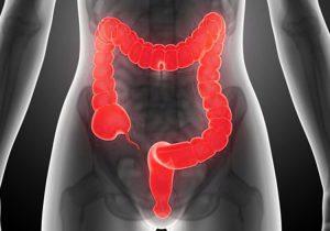 Dieta Detox para después de la hidroterapia de colon