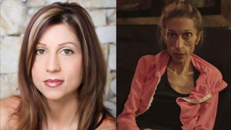 Mujer con anorexia severa gana derecho a morir