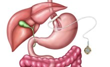 Gastric Banding Surgery in Mexico