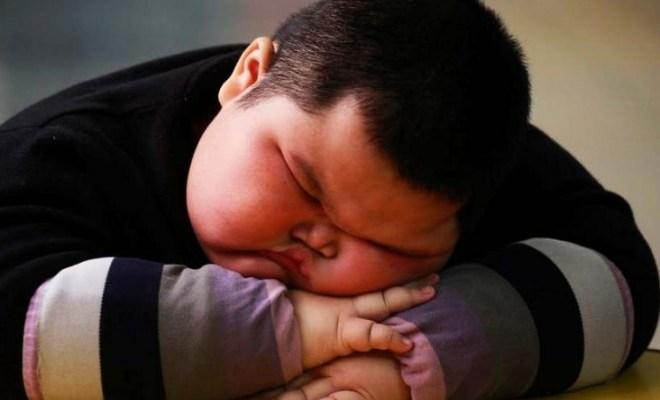 TIKTAK.ID - Obesitas Bisa Jadi Penyebab Munculnya Penyakit Pada Gusi