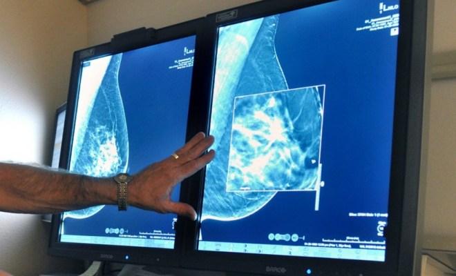 Robot Google Deteksi Kanker Payudara