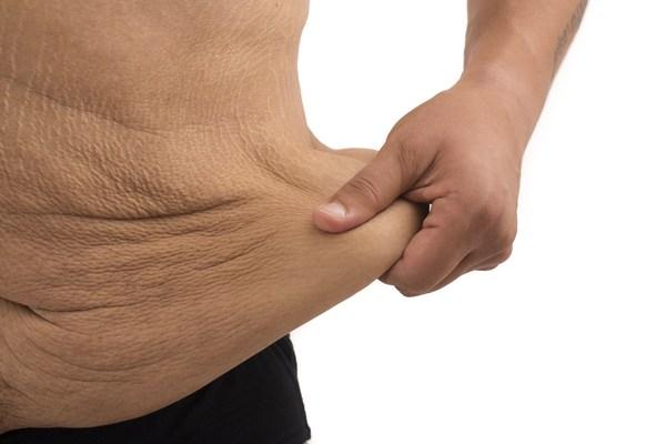 TIKTAK.ID - Cara Cegah Kulit Kendur Setelah Turun Berat Badan