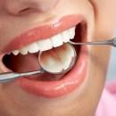 TIKTAK.ID - Cara Jaga Kesehatan Gigi dan Mulut Saat Jalani Puasa Selama Bulan Ramadan