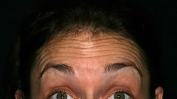 forehead-wrinkle-treatment