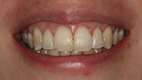 adult-teeth-straightening-orthodontics