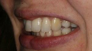 straighten-crooked-teeth