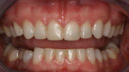 uneven-teeth-edges