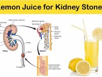 Simple & Easy Steps to Dissolve Kidney Stones with Lemon Juice