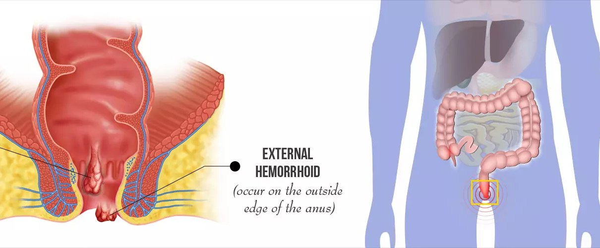 Hemorrhoids Causes and Prevention