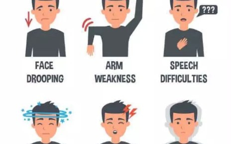 EARLY SIGNS AND SYMPTOMS OF STROKE