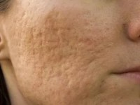 Large Facial Pores – Reasons for their occurrence and how to reduce them