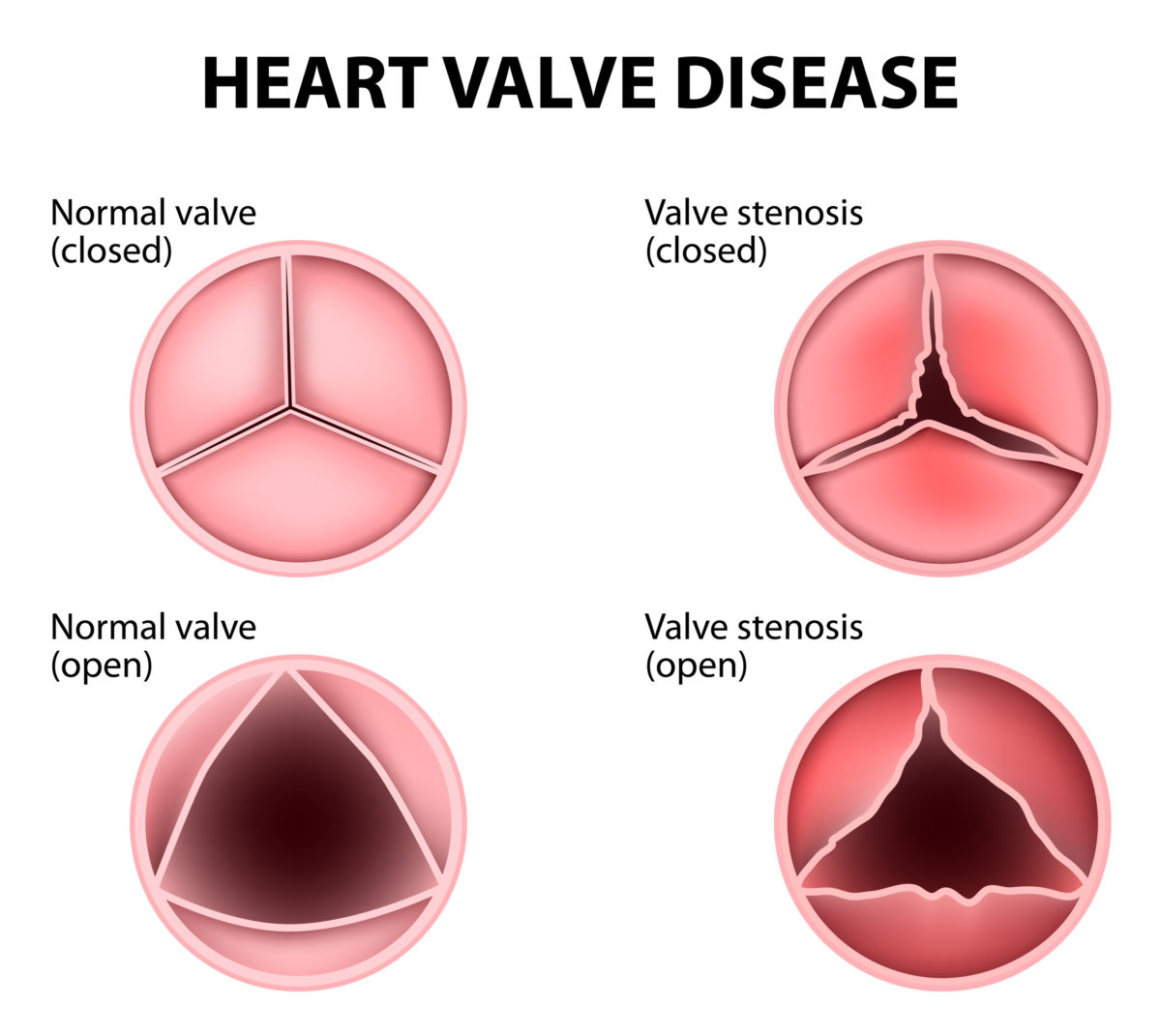 Image result for aortic valve disease