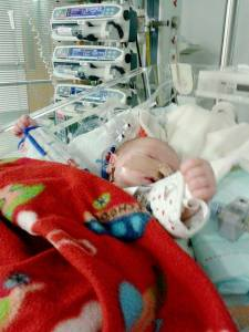 Baby Finlay was born with Transposition of the Great Arteries