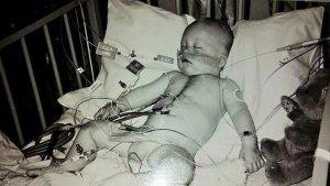 Patent Ductus Arteriosus - Will's Story