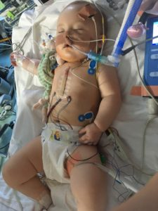 Tetralogy of Fallot - Edie's Story
