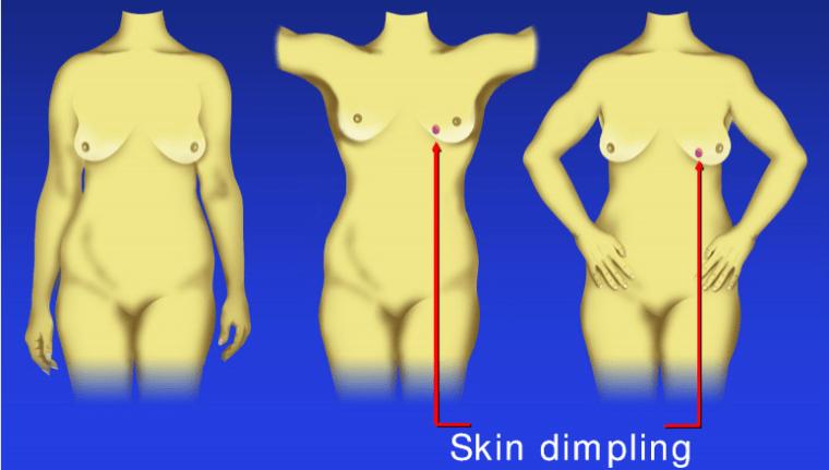 skin dimbling