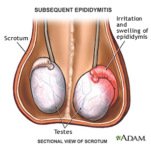Epididimit