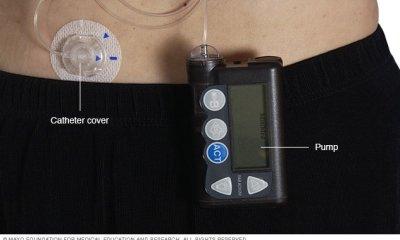 İnsülin pompası, vücudunuzun dışına takılan bir cep telefonunun boyutuyla ilgili bir cihazdır. Bir tüp insülin rezervuarını karın cildinin altına yerleştirilmiş bir kateterle birleştirir. İnsülin pompaları, belirli miktarlarda insülini otomatik olarak ve yediğinizde dağıtmaya programlanmıştır.