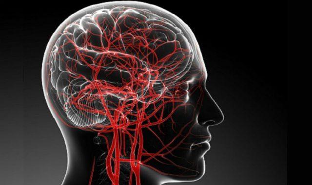 cerebro con flujo saguineo