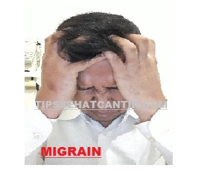 Cara Mengobati Migrain Sakit Kepala Sebelah Mudah Tanpa Efek Samping.