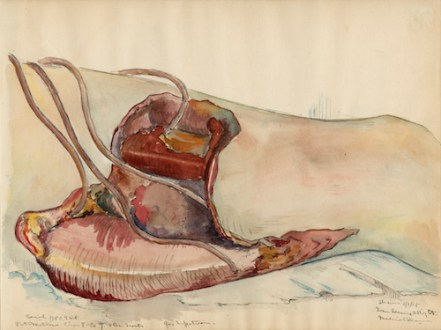 Ivan Albright (1897–1983) Medical drawings made direct from patients & in operating room in Base Hospital #11 located at Nantes, France, 1918–19. Sketchbook of 56 pages, watercolor, pencil, and ink on cream wove paper, 9 × 24¼ in. The University of Chicago Library, Special Collections Research Center
