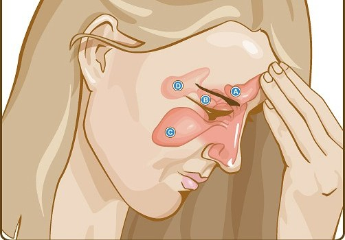 siddha medicine for sinus sinusitis and sinus infections