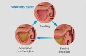 types and symptoms of sinus in tamil vaithiyam